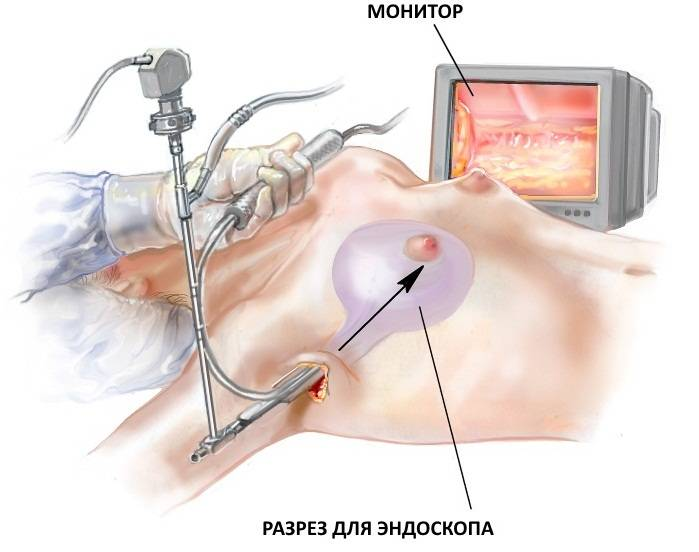 Птоз молочных желез: причины, симптомы и лечение в статье пластического хирурга нестеренко м