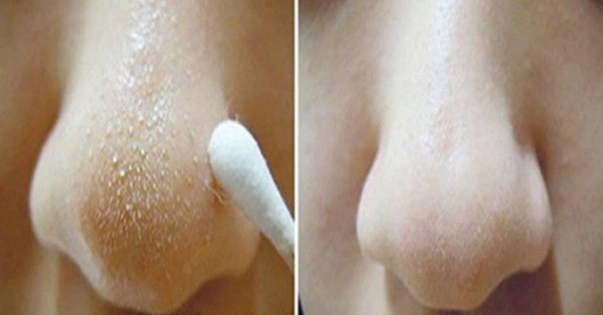 Выдавливание комедонов: почему нельзя выдавливать черные точки на лице