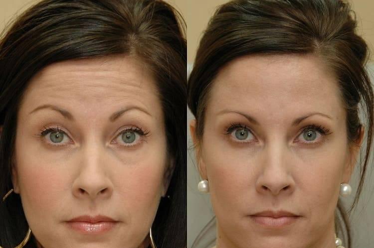 Полисорб: маска для лица от прыщей и черных точек, как сделать для очищения кожи – рецепт дерматолога и отзывы