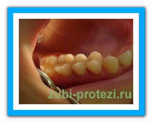 Зубные коронки: лучший вариант протезирования для сложных случаев