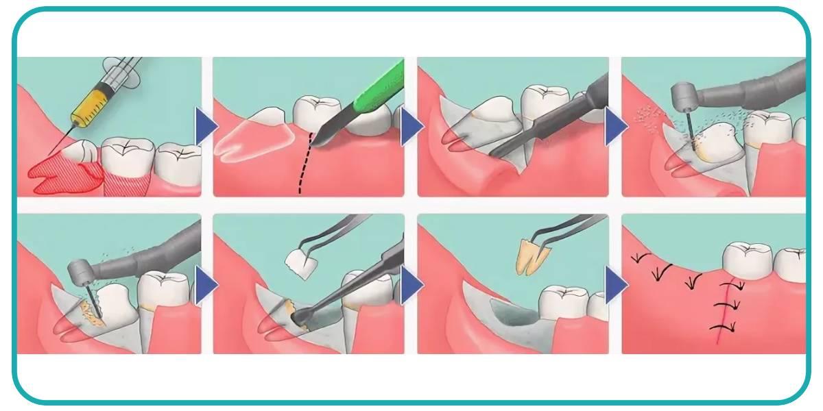 Отек после удаления зуба