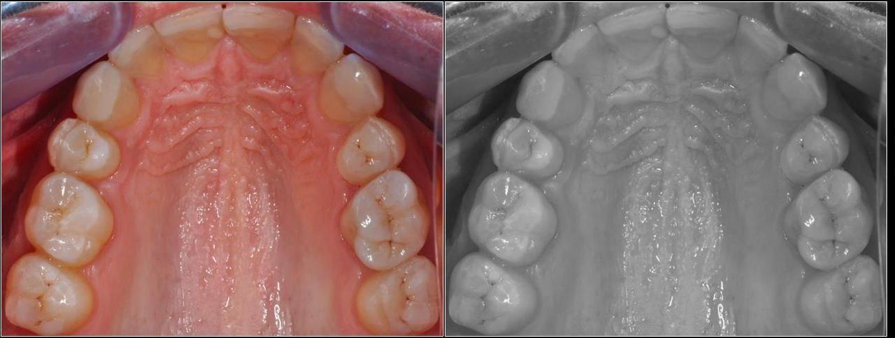 Как спасти зубы при их повышенной стираемости? рекомендации специалистов
