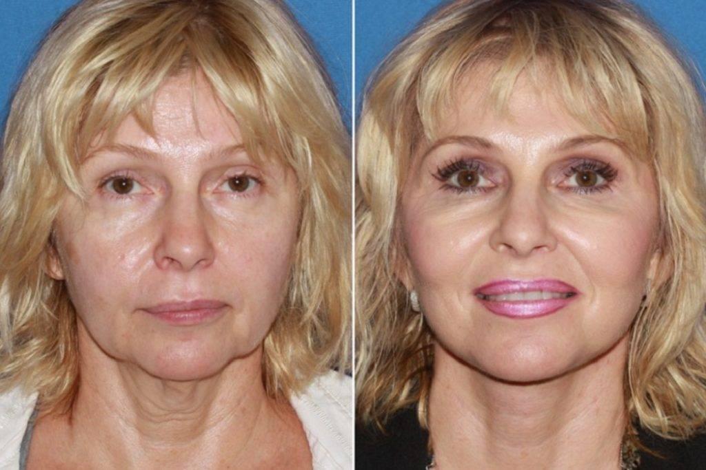 Восстановление после подтяжки лица