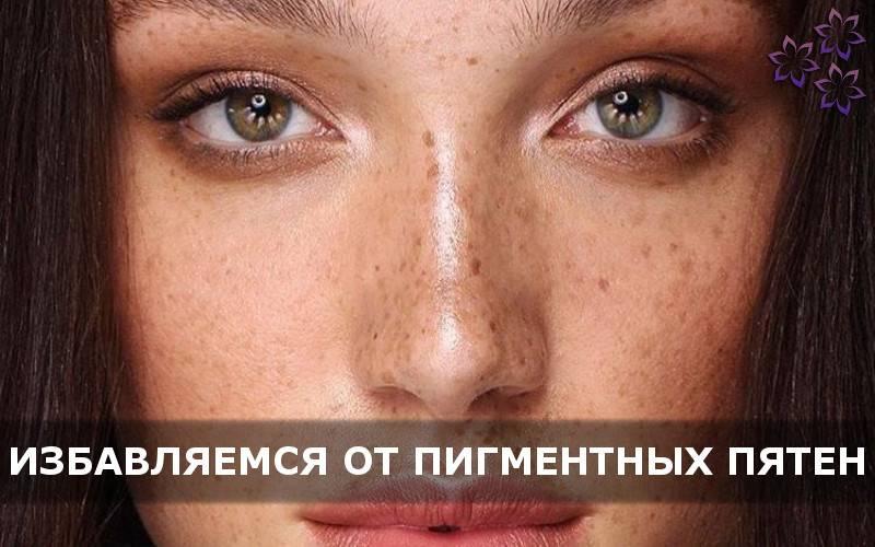 Пигментные пятна под глазами: виды пигментации и эффективные способы ее устранения