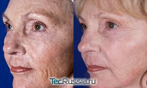 Ксероз (ксеродермия) кожи: причины и лечение, фото с описанием симптомов