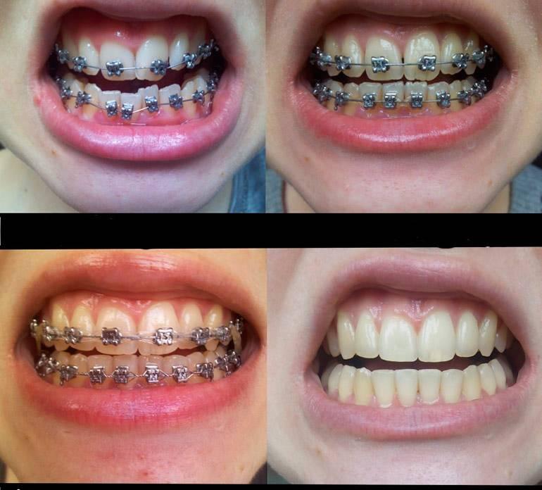 Брекеты на нижнюю челюсть — эффективное выравнивание зубного ряда