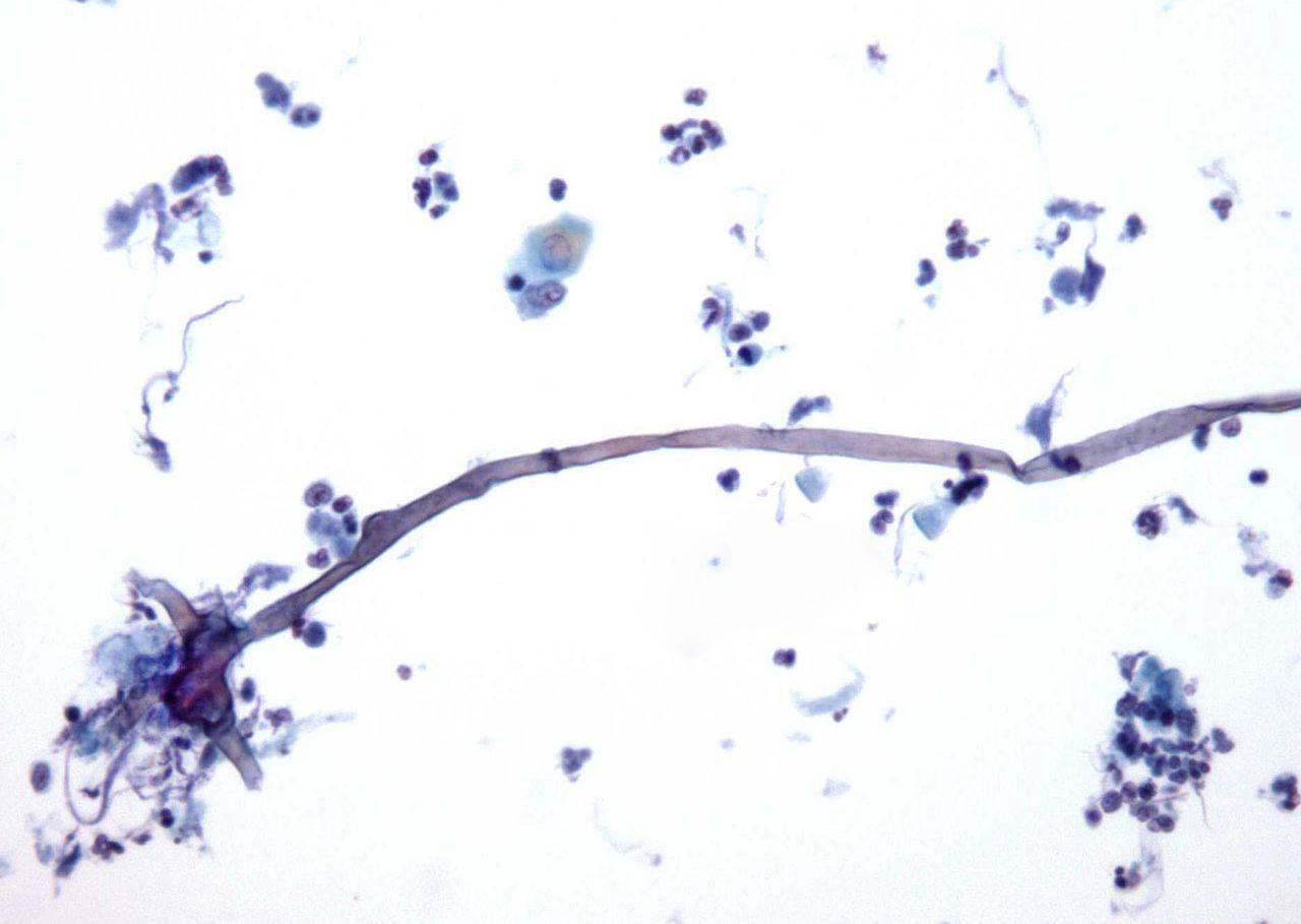 Мицелий грибов в мазке на флору