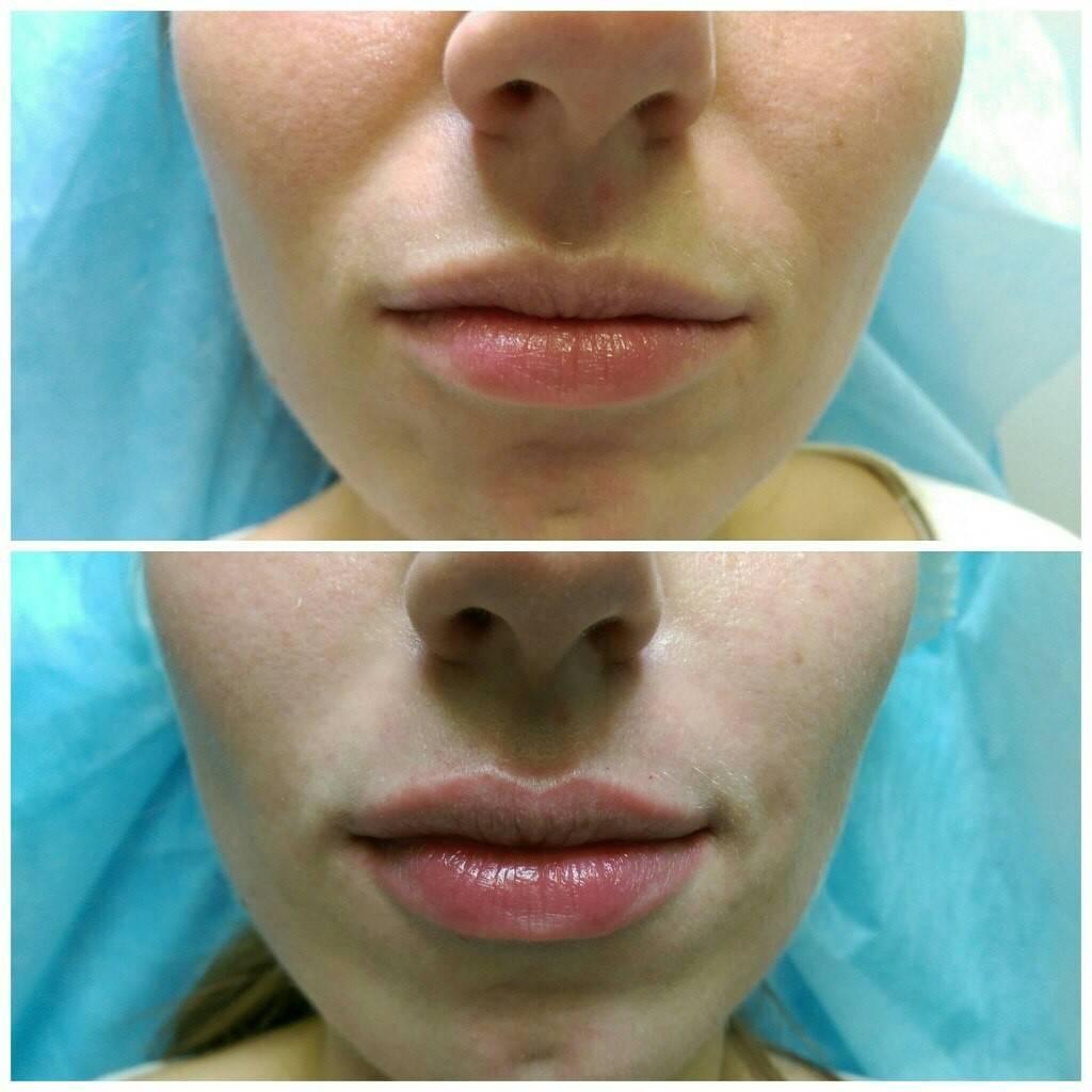 11 способов безинъекционного увеличения губ
