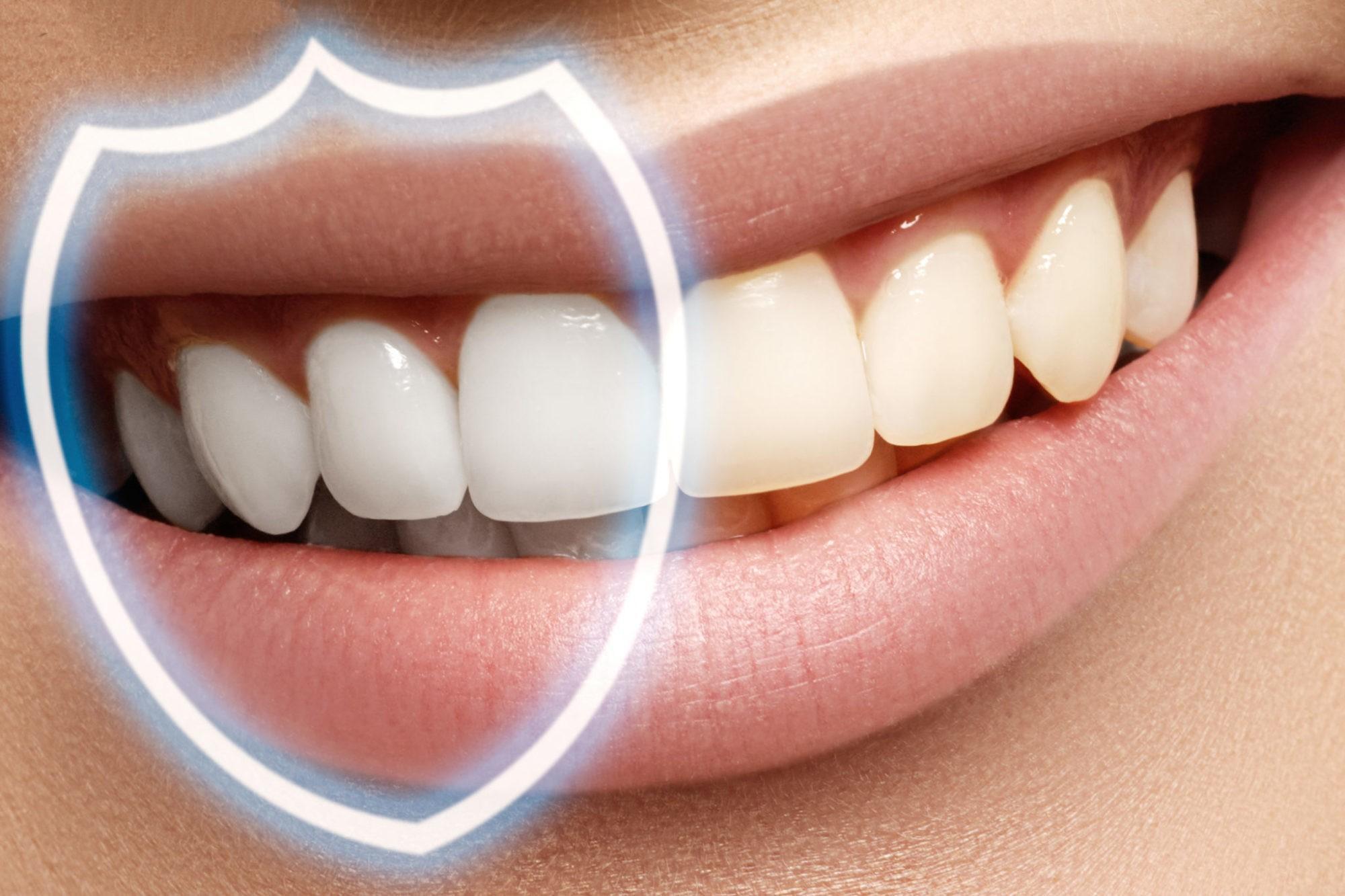 Реминерализация зубов – необходимая процедура для восстановления эмали