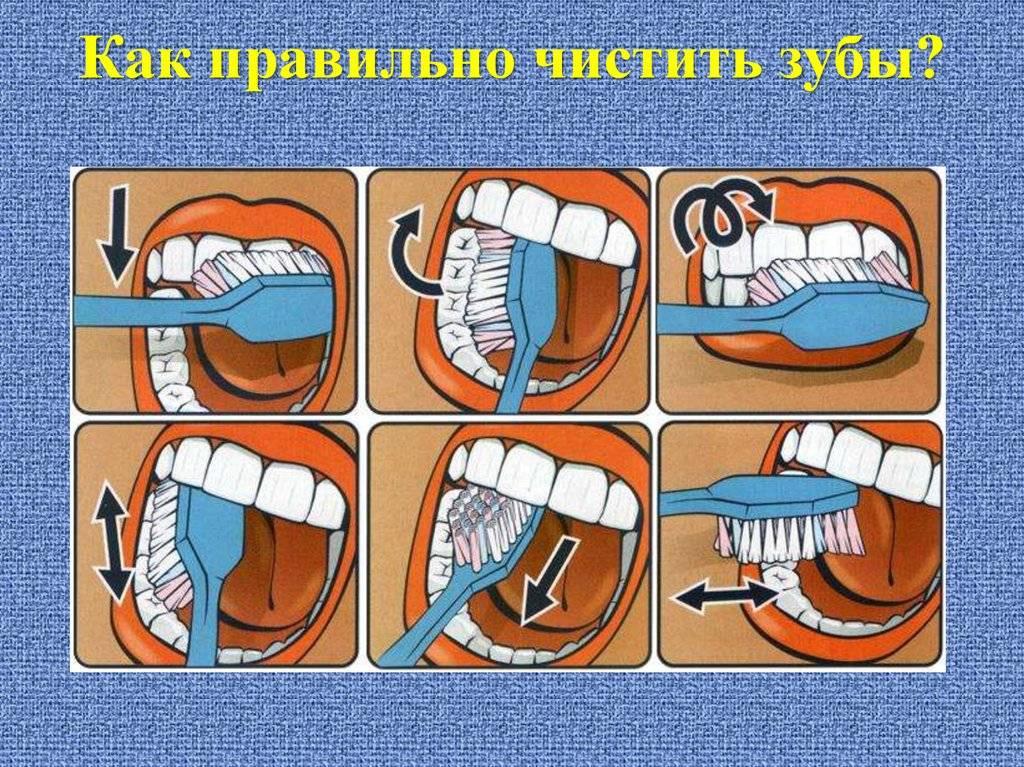 Как снять повышенную чувствительность зубов в домашних условиях народными средствами. профилактика чувствительности зубов