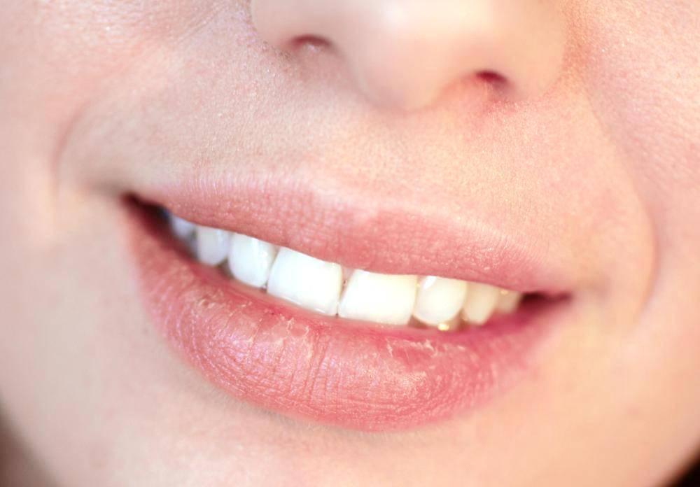 Как диагностировать и вылечить бледные губы