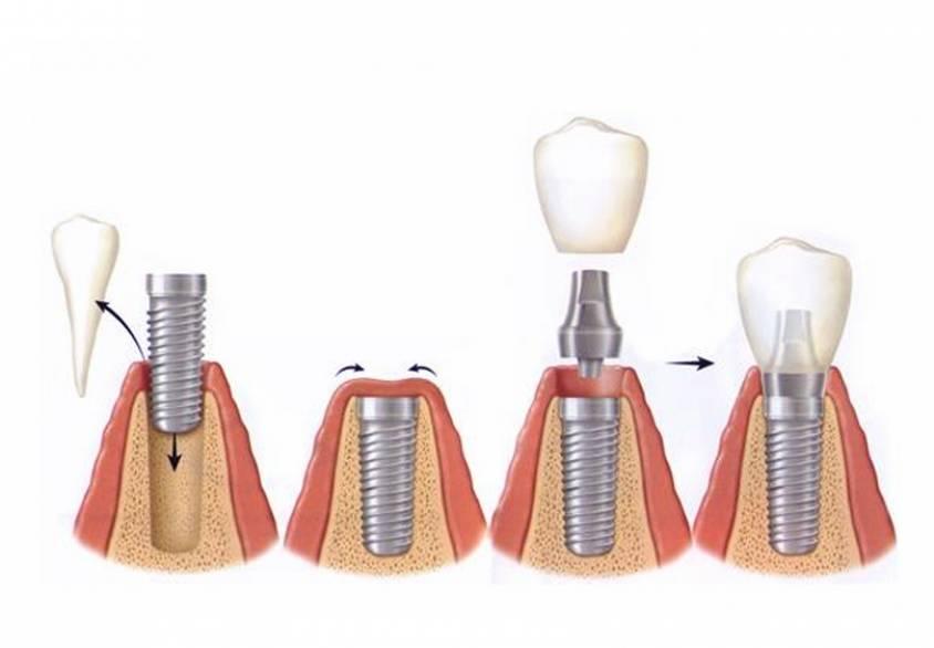 Особенности имплантации верхних зубов