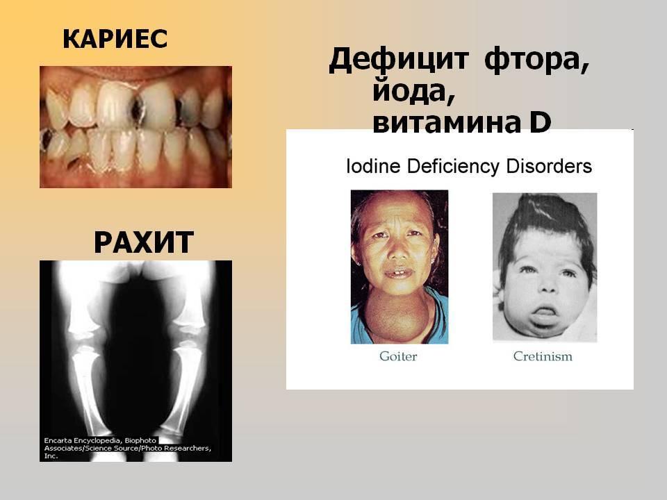 Чем грозит недостаток и переизбыток фтора для зубов — каково его влияние на эмаль? фторид натрия – где содержится, роль в организме и причины отравления к чему приводит недостаток фтора