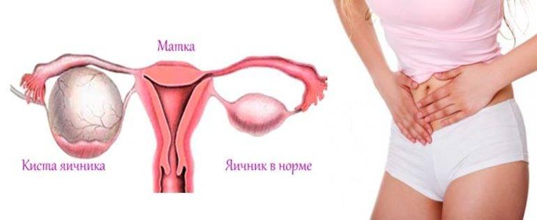 Причины увеличения яичника у женщин