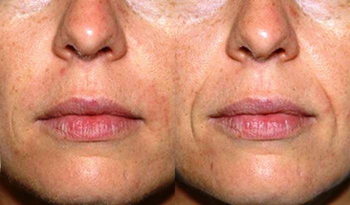 Как избавиться от гиалуроновой кислоты в губах?