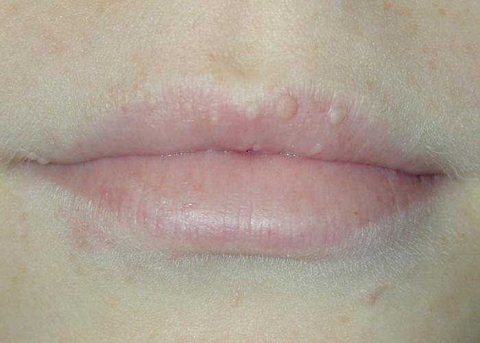 Почему на губе появляется синее пятно и что с этим делать