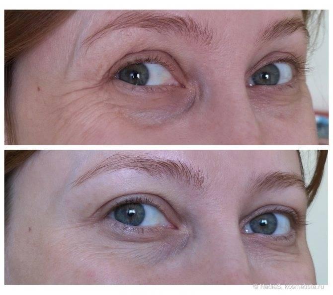 Мезоботокс под глаза что это такое? как действует: фото до и после