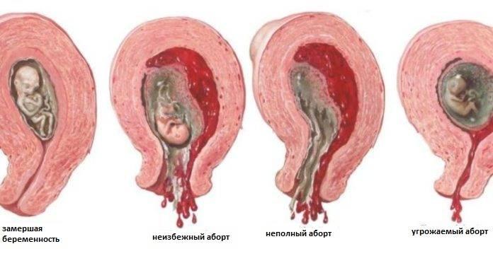 Когда в норме начинаются месячные после разных типов аборта