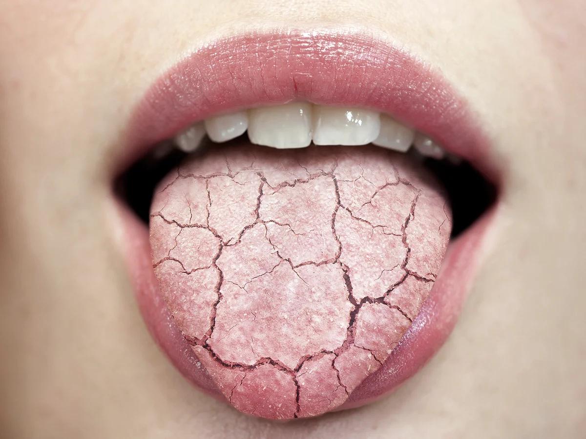 Сухость во рту утром, днем и по ночам: причины и лечение