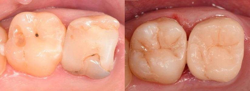 Потемнел зуб – почему и что делать?