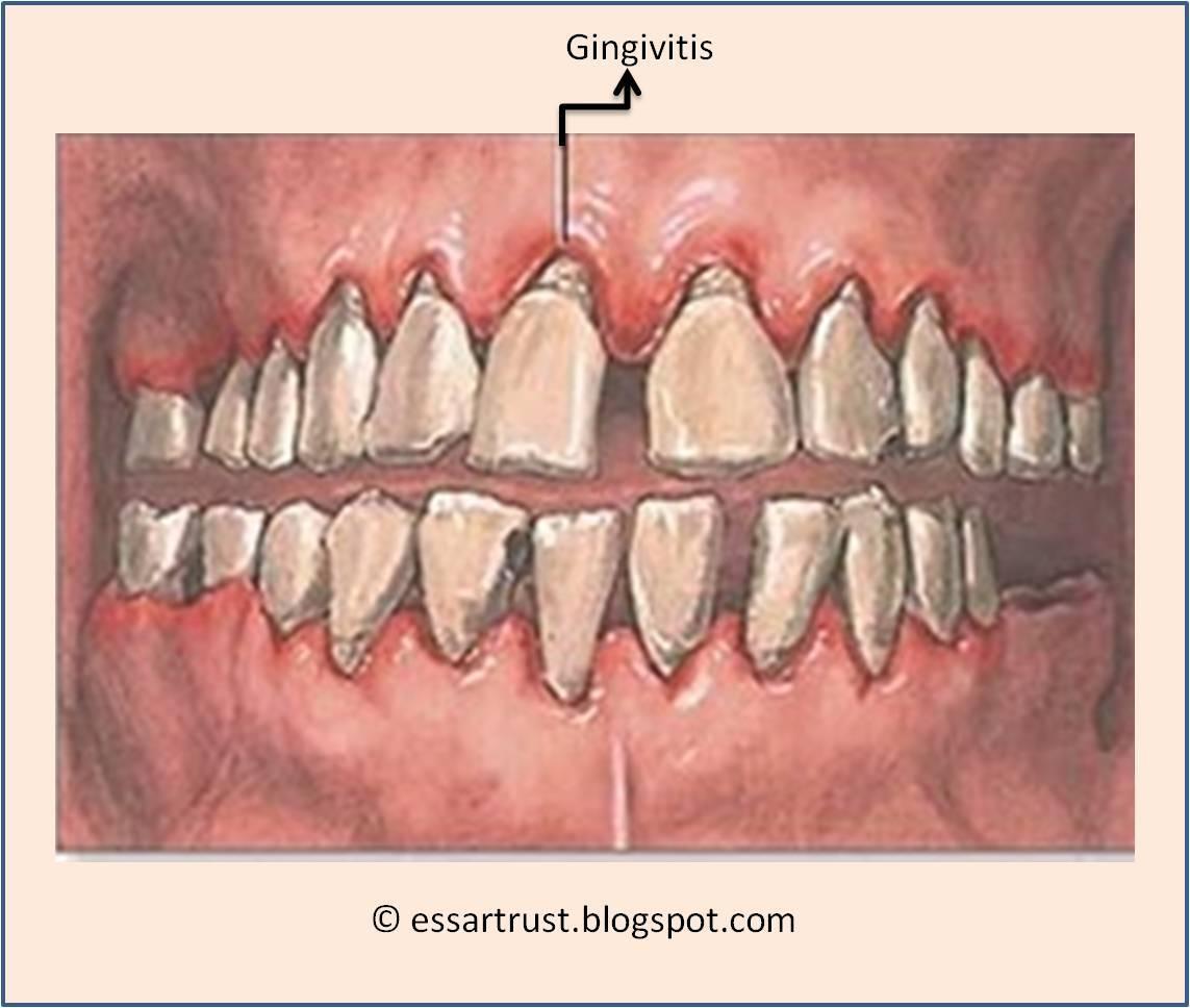 Учебно-методическое пособие для студентов стоматологического факультета 5 курса «геронтостоматология и заболевания слизистой оболочки рта»