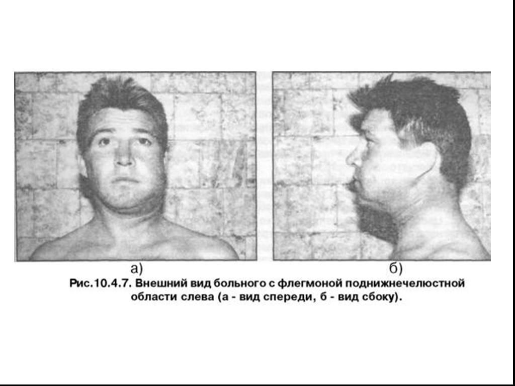 Флегмона челюстно-лицевой области: методы физиолечения