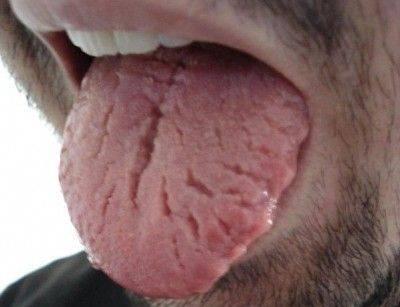 Болезни языка: виды, симптомы, описание признаков, фото, лечение