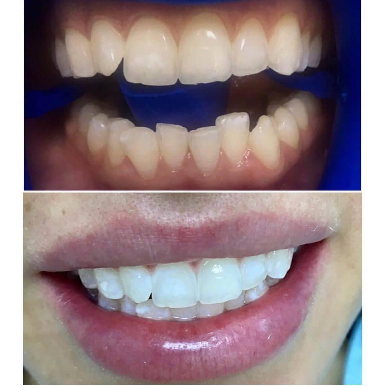 Насколько эффективно косметическое отбеливание зубов?