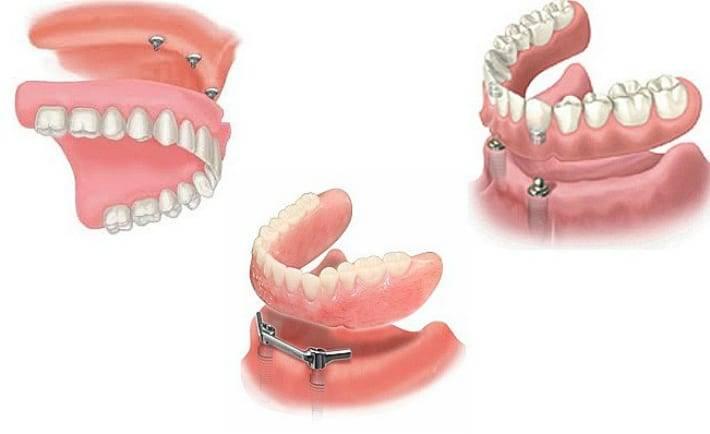 Когда применяют балочный протезы на имплантах в стоматологии?