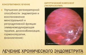Различия между эндометритом и эндометриозом
