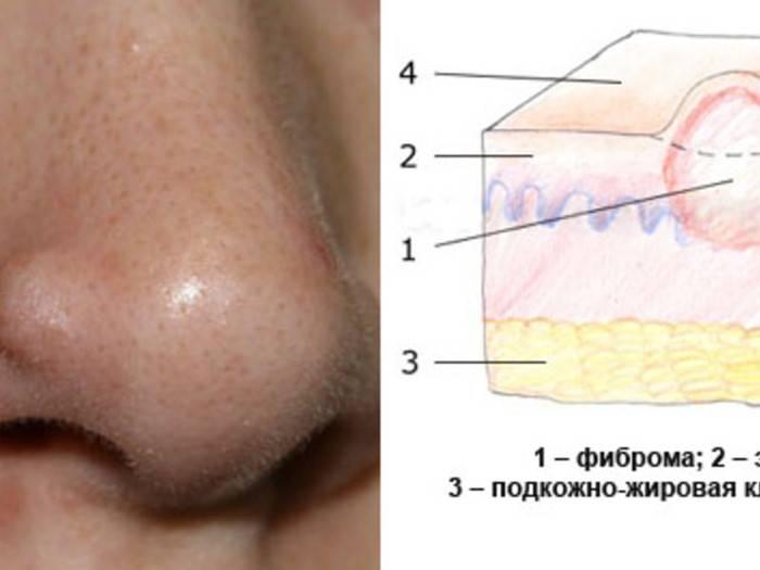 Уплотнение под кожей в виде шарика: фото, причины, как лечить