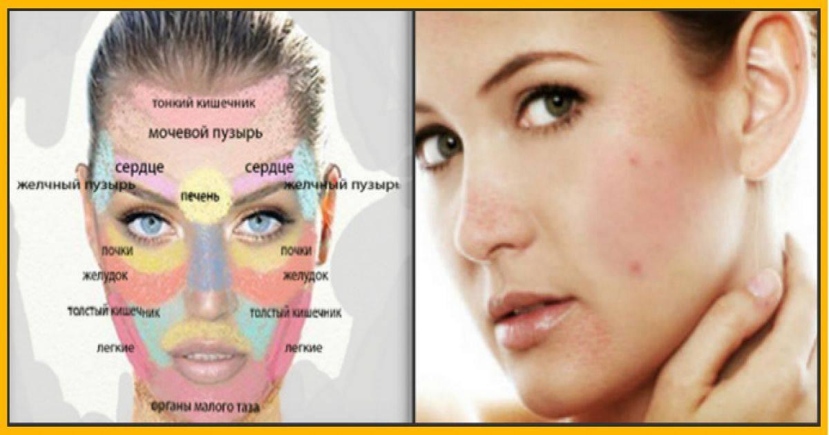 Причины угревой сыпи у женщин на лице, висках, подбородке. психосоматика, лечение, как избавиться