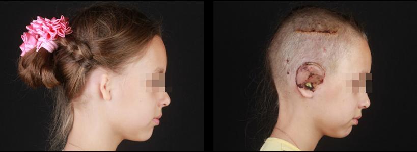 Операция на ушную раковину: показания и особенности процедуры