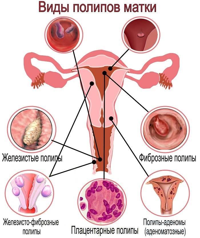 Почему появляется полип в матке после родов?
