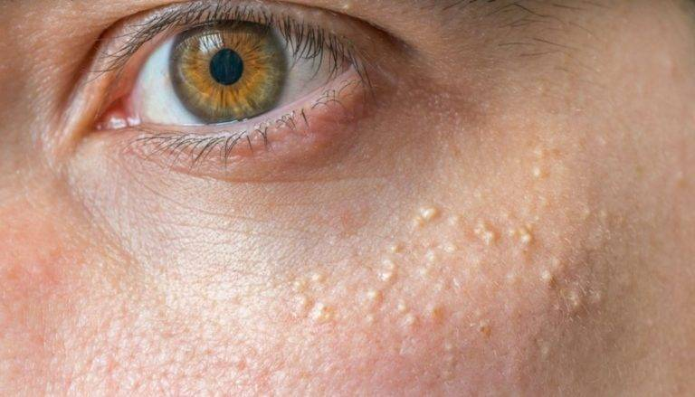 Просянка под глазами или белые точки – как убрать без последствий?