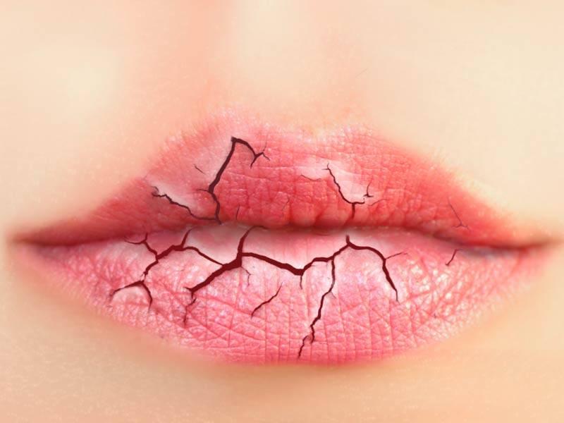 Трескаются губы у ребенка