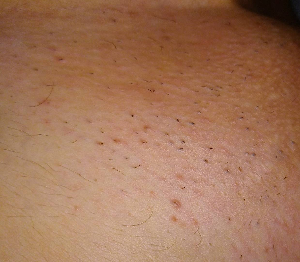 Раздражение после бритья в интимной зоне (зоне бикини) – как избавиться? профилактика раздражений в зоне бикини
