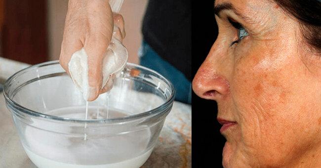 Старческие пигментные пятна на лице – как избавиться