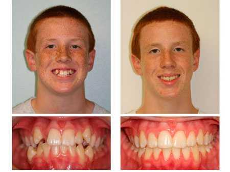 7 показаний к процедуре подпиливания зубов