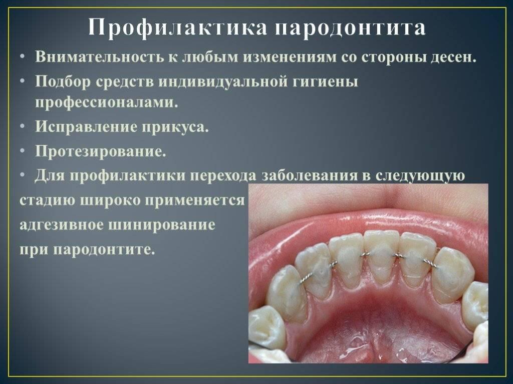 Болезни зубов и десен у человека