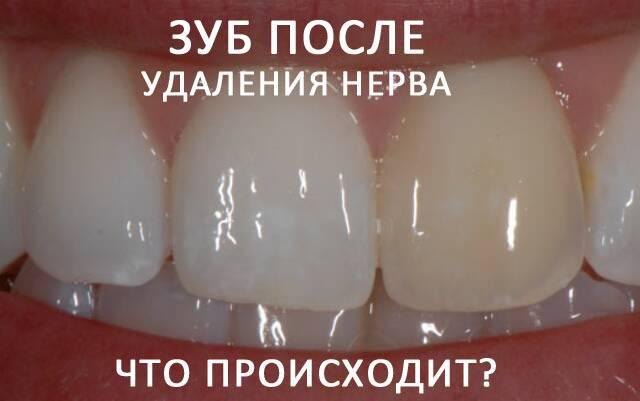 Почему после удаления нерва при надавливании болит зуб и что с этим делать?