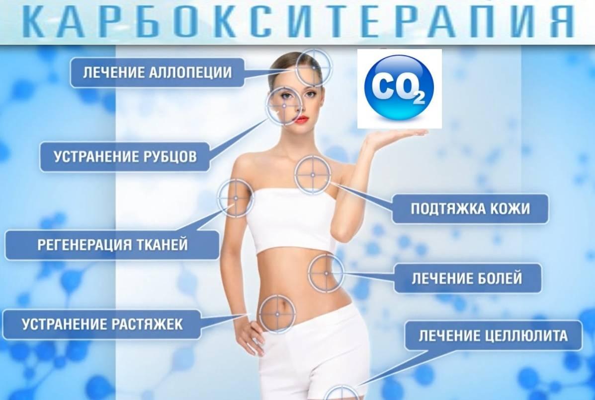 Что такое – карбокситерапия для лица: безинъекционная и инъекционная