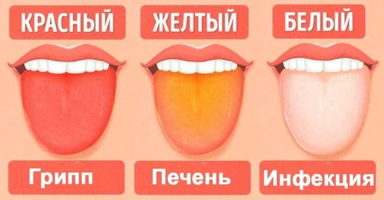 Цвет языка при заболеваниях
