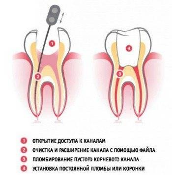 Если после лечения пришеечного кариеса зуб реагирует на холодное и горячее