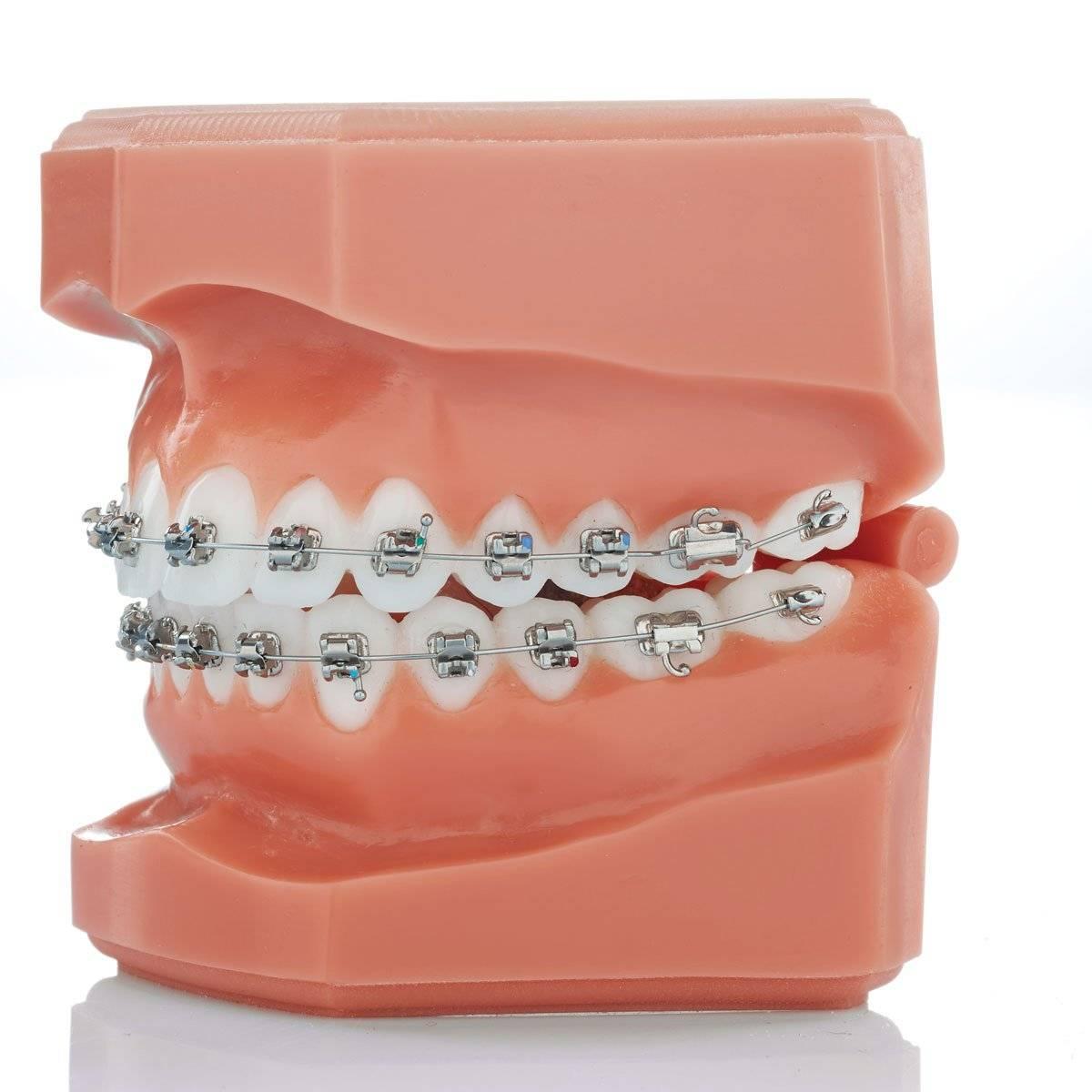 Брекеты mini master — маленькие зубные конструкции высокого качества
