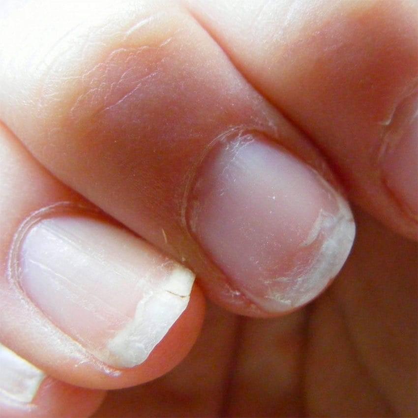 Почему слоятся ногти на руках: причины и лечение в домашних условиях