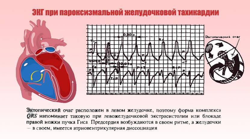 Как справиться с регулярными болями в сердце перед месячными