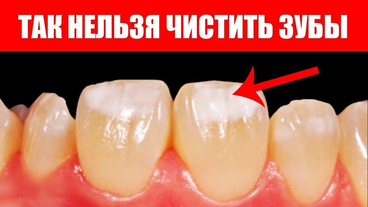 Как отбеливать зубы содой: самые популярные методы