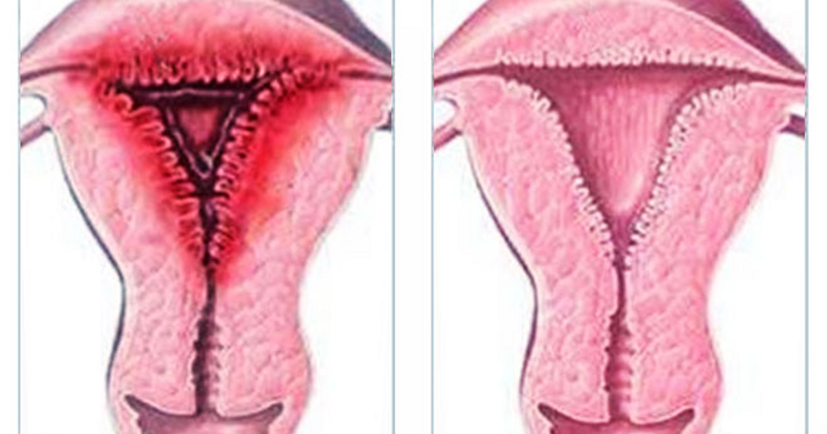 Картинки гиперплазия эндометрия