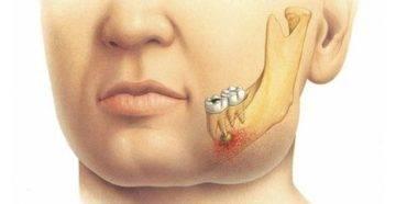 Флюс зубной, быстро снять опухоль в домашних условиях